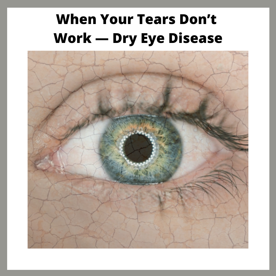 an image of a dry eye and cracked skin, and the headline of this blog post